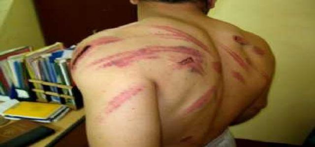 tortur-Budy