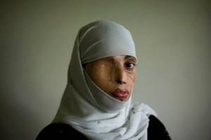mujer-musulmana-golpeada1