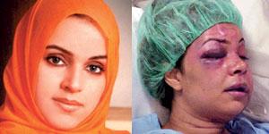 mujer-musulmana-golpeada3
