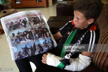 Tamimi el niño pali del brazo roto