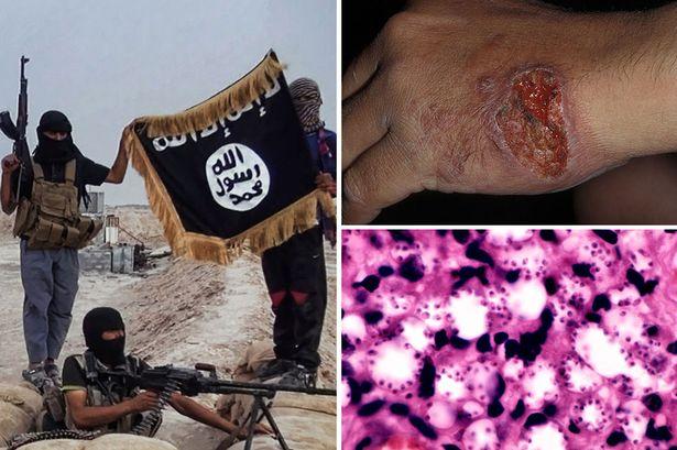 ISIS-MAIN
