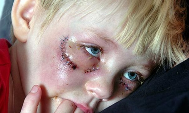 swedish-12-year-old-beaten-by-muslims-for-wrong-eye-color